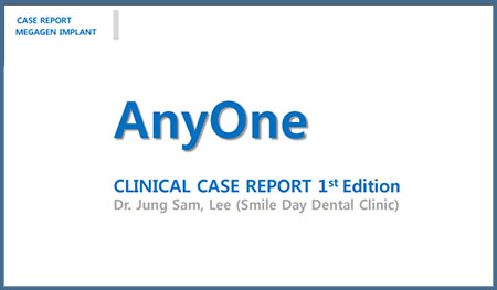 AnyOne Clinical Case Report – Dr. Jung Sam Lee