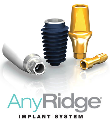 AnyRidge Implant Systems | ids integrated dental systems