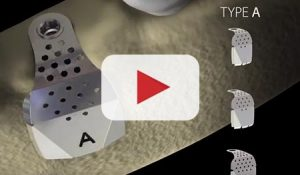 Video Cover: i-Gen Types