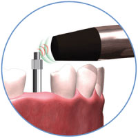 Mega ISQ Three Step Procedure Step 2 | ids integrated dental systems