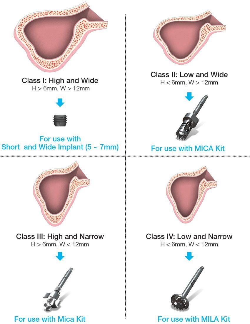 MicaKit Surgical Method Classified by Sinus Condition Graphic | ids integrated dental systems