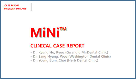 MiNi Clinical Case Report – Dr. Kyung Ho Ryoo