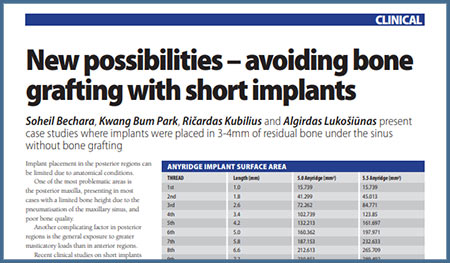 New Possibilities – Avoiding Bone Grafting with Short Implants