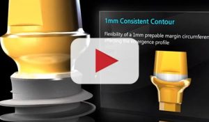 Video Cover: Why AnyRidge Implant System?